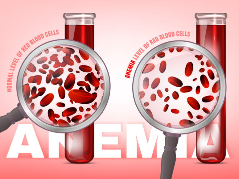 globulos rojos en mayor y menor cantidad, lupa, Normal level of red blood cells in comparison with iron deficiency anemia level. Medical and healthcare concept. Vector illustration isolated on a white background.